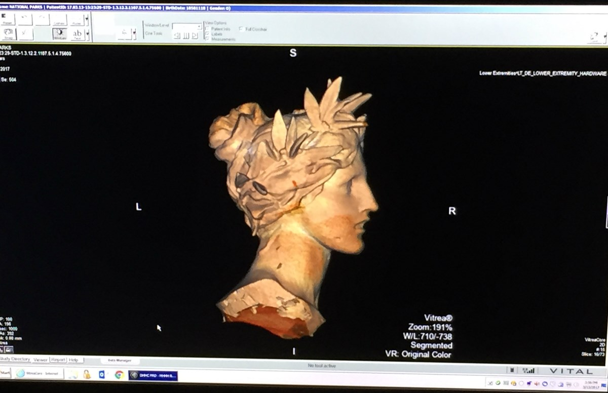 Profile image generated using a CT scanning device of a woman's face