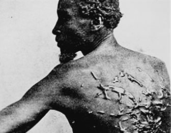 Photo of slave with large scars on his back from repeated whippings