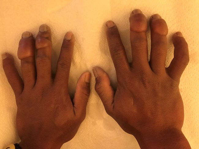 Two hands with frostbite injuries