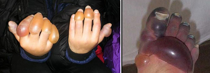 Photo of frostbitten hands and foot with large swollen blisters