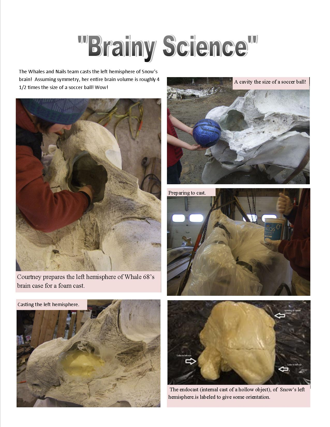 Brain Case in Pictures
