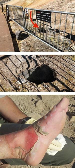 Top: A waist-deep hole remains where an individual broke through a thin crust at Sulphur Works after stepping around the barrier. Bottom: The badly burned foot of a visitor who traveled off-trail in Devils Kitchen hydrothermal area.