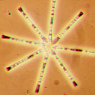 Photo of a diatom