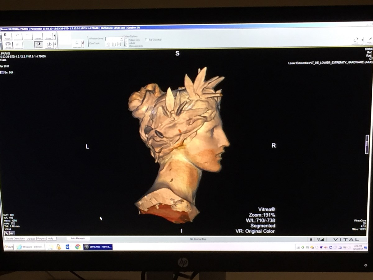 Computer Scan of Woman's Head Sculpture