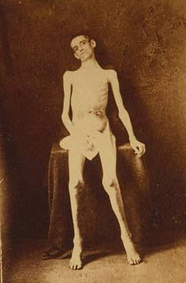 An emaciated inmate of Andersonville Military Prison.