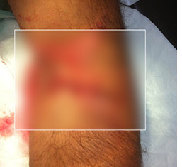 Click to view the unedited photo of the climber's arm after treatment